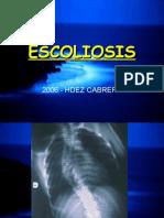 4-12 Clase de Escoliosis