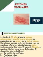 Lesiones Ampollares