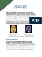 El Cerebro Cambiante de La Enfermedad de Alzheimer
