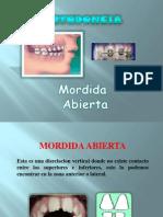 mordidaabierta-090420184010-phpapp01