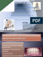 DENTADURA_UNIMAXILAR[1]