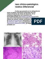 3. Neumopatía intersticial