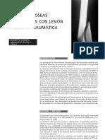 Fracturas Oseas Lesion Medular