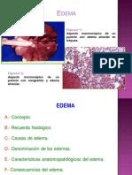 Alteraciones Hidricas y Hemodinamicas Edema