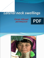Lateral Neck Swelling