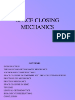 Space Closing Mechanics- DIFFERENT LOOPS
