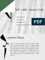Chf + Mr + Severe Cad