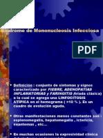 Síndrome de Mononucleosis Infecciosa
