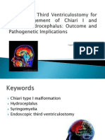 Endoscopic Third Ventriculostomy for the Management of Chiari