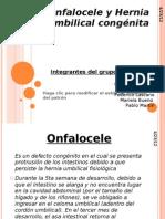 Onfalocele