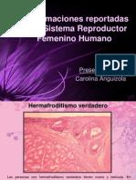 malformacionesenelsistemareproductorfemenino-091213232608-phpapp01
