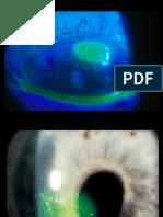 Córnea 2 y esclera