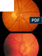 Nervio óptico y quiasma