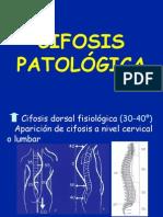 37.1 - patología del raquis II (cifosis)