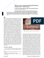 Use of Polyethylene Ribbon to Create a Provisional Fixed Partial Denture