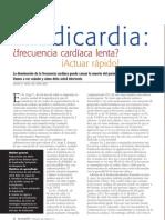 Bradicardia Nursing