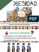 Obesidad José Manuel