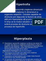 carcinom spinocelular