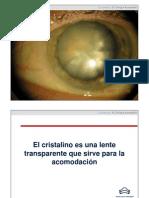 Cataratas. Ponencia del Dr Enrique Aramendia.