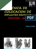 Colocacion Implantes Paso a Paso II