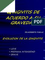 Gingivitis de Acuerdo a Gravedad, Curso y Duracion