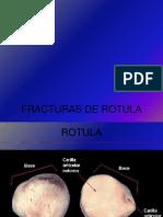 Clase Fracturas de Rotula1