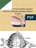 Bloqueo Del Nervio Alveolar Superior Anterior Mediante Abordaje