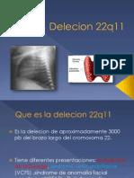 Delecion 22q11