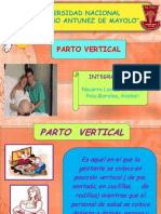 Parto Vertical Expo