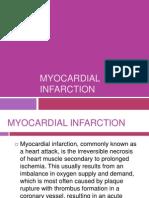 Myocardial Infac