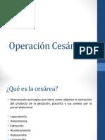 Operación Cesárea