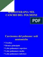 7 CA Polmone LEZIONE