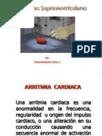 Arritmia - arritmias supraventriculares