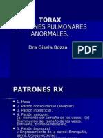 TÓRAX2