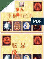 07年脑BBB功能脑扫描2节