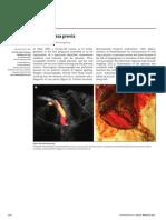 Placental Vasa Previa
