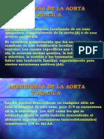 Aneurism As de La Aorta Toracica
