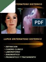 Lupus Sj+Âgren Esclerodermia Espondilitis