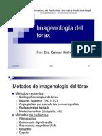Imagenologia torax 2006