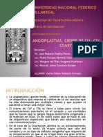 Angioplastía_CIV_CIA_Coartacion_Aortica