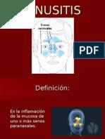 Rinosinusitis Archivo Adjunto