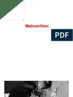 Malnutrition - A Checklist for Nutitional Survey
