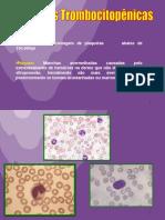 Seminario Purpuras Trombocitopenicas Sem 1 2005