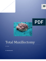 Maxillectomy a Review