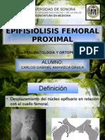 Epifisiolisis Femoral Proximal, Artosis de Cadera, Tratamiento Quirúrgico de Una Luxación Congénita de Cadera en El Adulto