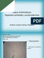 Lupus Eritematoso, Depósito amiloide, esclerodermia