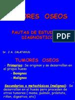 SEMINARIO  7 Tumores oseos