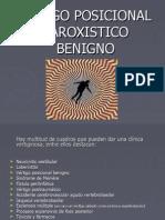 Vértigo posicional paroxístico benigno (VPPB)
