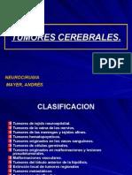 TUMORES CEREBRALES3