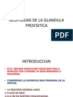 Neoplasias de La Glandula Pro Static A